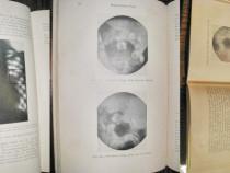 Roentgen vechi-Radiografia tehnica de înreg. ale organelor