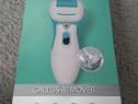 Callus remover/aparat curatat calcaie, nou nout,la cutie